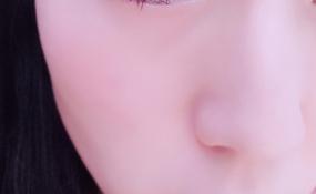 眼妆之一 案例图片