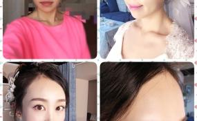 妆前妆后 案例图片